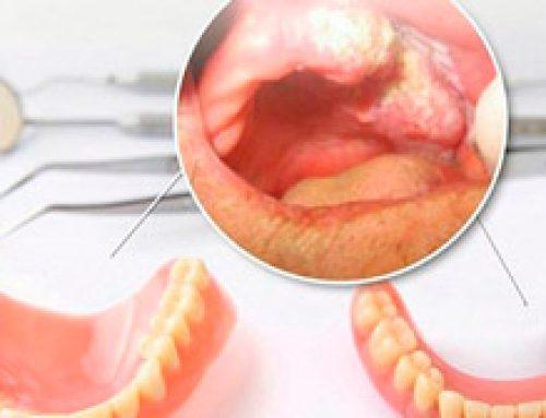 Próteses antigas e mal adaptadas podem causar câncer bucal.